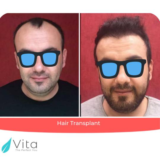 زراعة الشعر بتقنية FUE outcome at Vita Estetic
