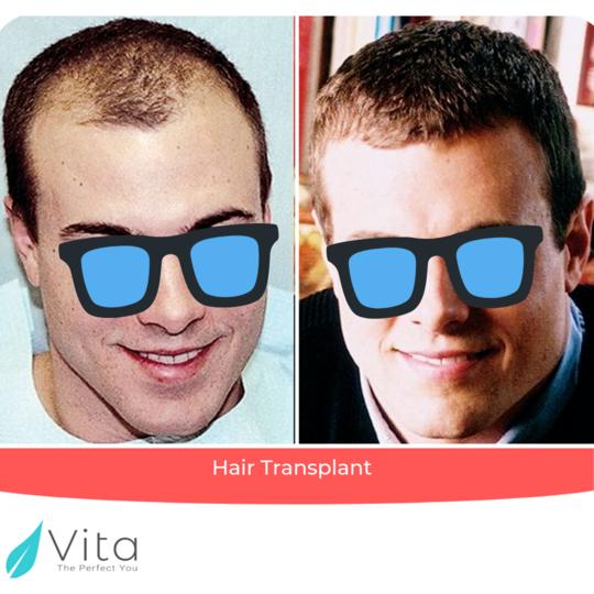 Seamless زراعة الشعر result at Vita Estetic
