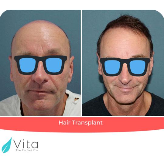 زراعة الشعر بتقنية FUE result at Vita Estetic