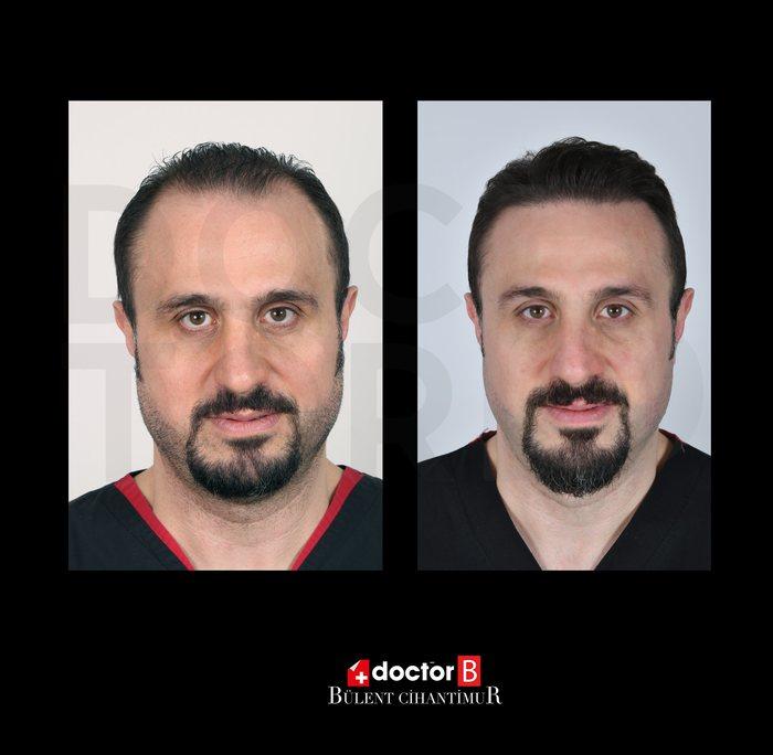 Photo before-after hair transplant Estetil International in Bursa