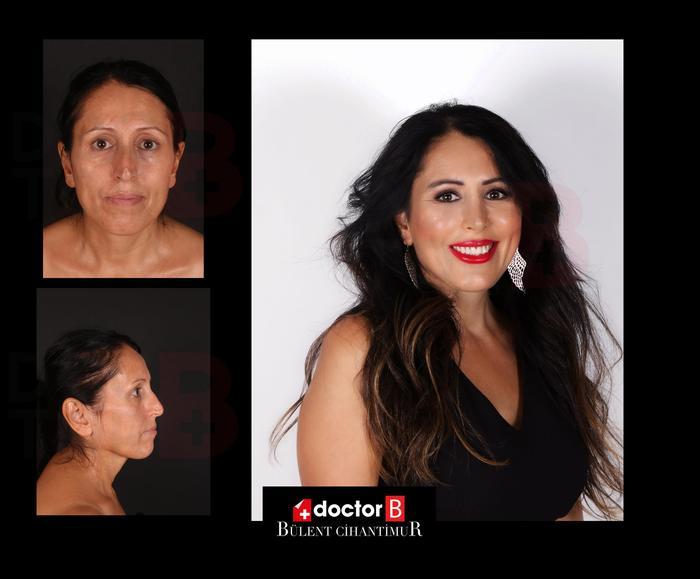 Before-after facelift at Estetik International Bursa