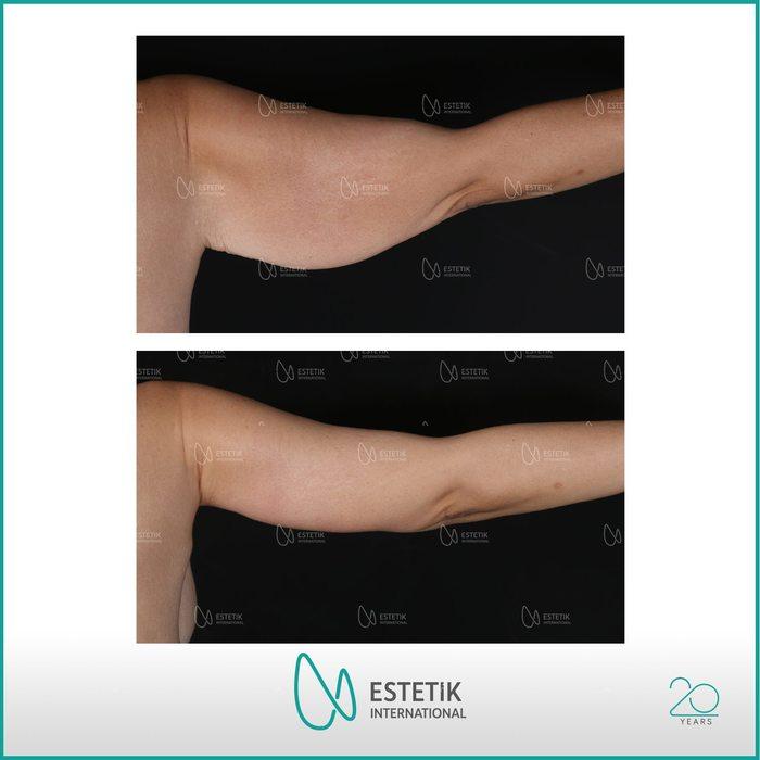 Before-after arm lift at Estetik International Bursa