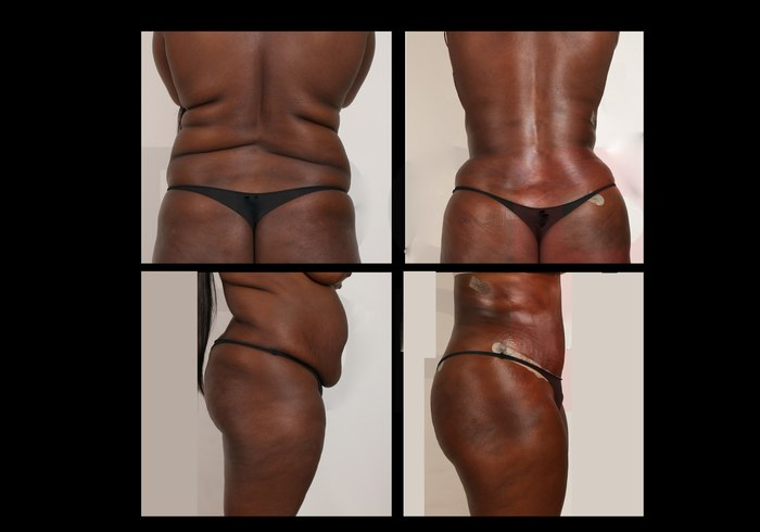 Before-after liposuction at Estetik International Bursa
