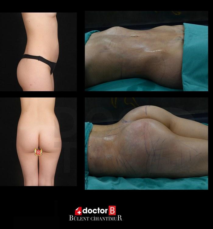Before-after butt lift and abdominoplasty at estetik bursa </p data-verified=