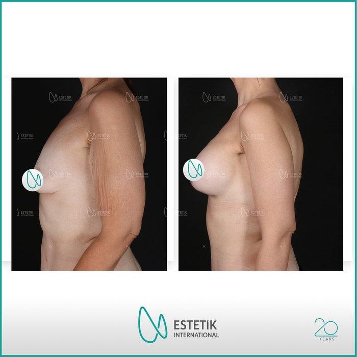 Before-after breast and arm lift at Estetik International Bursa