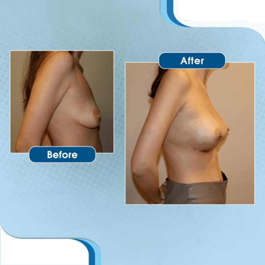 Before-after breast lift in Turkey