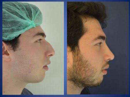 До и после ринопластики в Стамбул Аэстетик