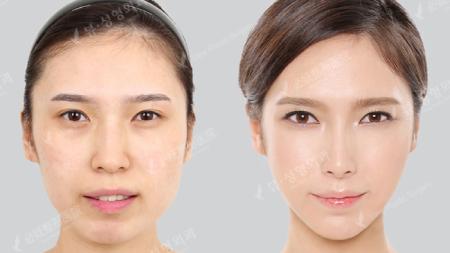 до и после ринопластики в View