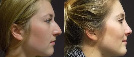 до и после ринопластики в FORME