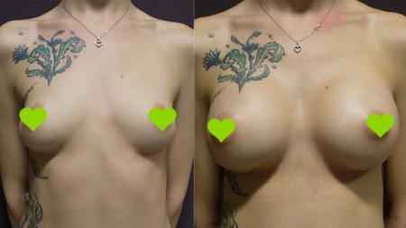 до и после увеличения груди в FORME