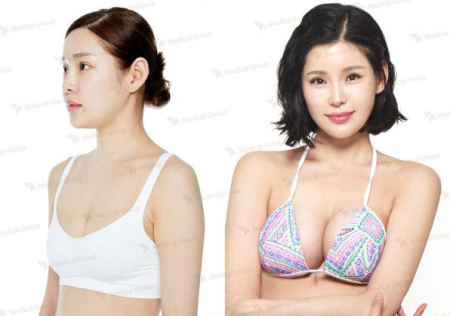 до и после увеличения груди в JK