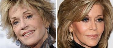 Джейн Фонда до и после пластики