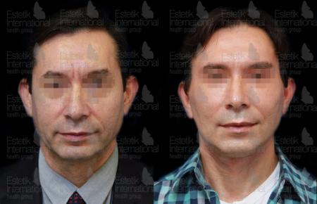 до и после фейслифтинга в Estetik International