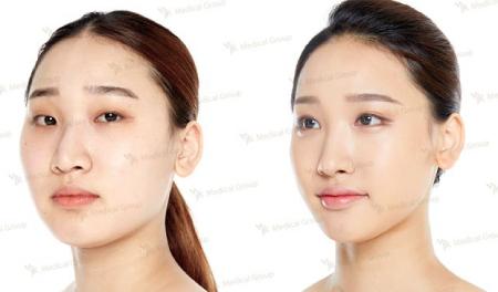 До и после ринопластики в JK Plastic Surgery