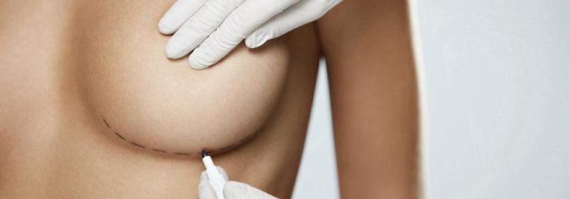 Альтернатива грудным имплантам