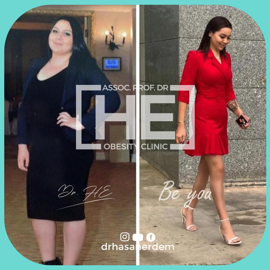 Patient after bariatric surgery
