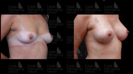 Фотографии груди до и после маммопластики