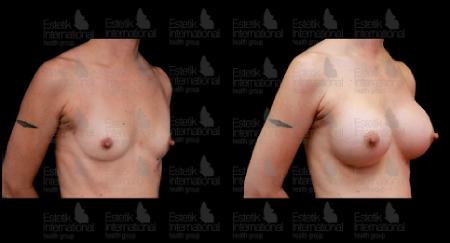 Фото груди после пластики