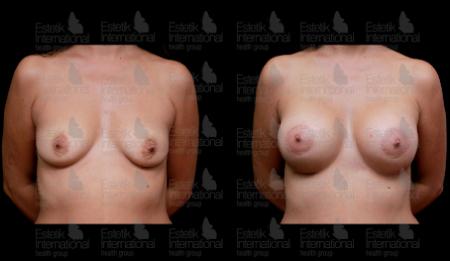 Результаты аугментационной маммопластики