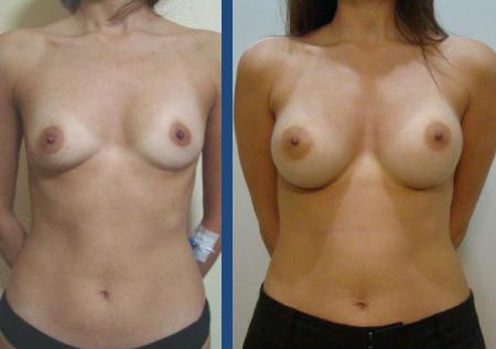 До и после увеличения молочных желез