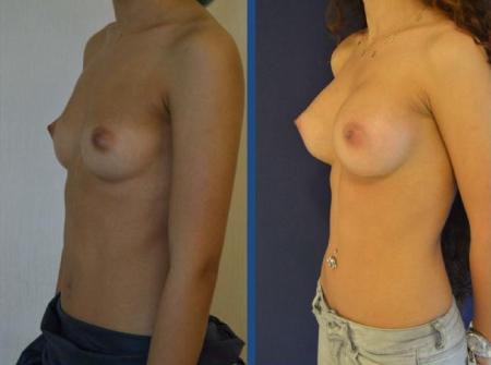 Фото груди до и после операции