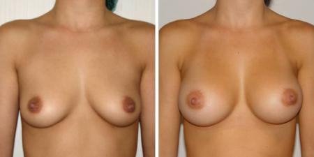 До и после маммопластики