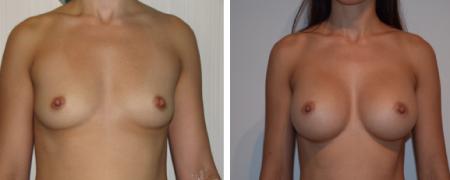 До и после увеличения груди