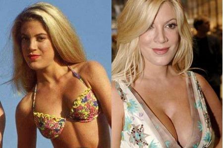 Тори Спеллинг до и после увеличения груди