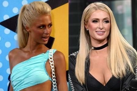 Пэрис Хилтон до и после увеличения груди