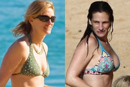 Джулия Робертс до и после увеличения груди