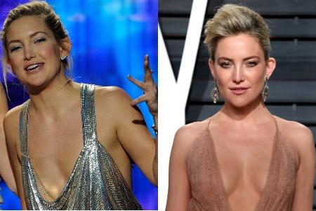 Кейт Хадсон до и после увеличения груди