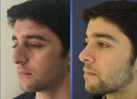 Фото после операции ринопластика