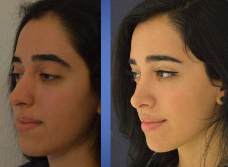 Фото девушки до и после ринопластики