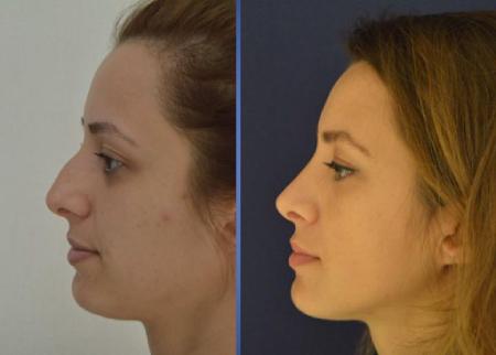 Фото носа после операции ринопластика