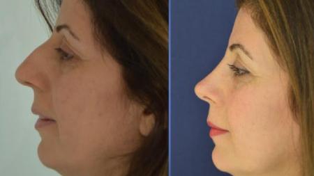 Фото лица после ринопластики