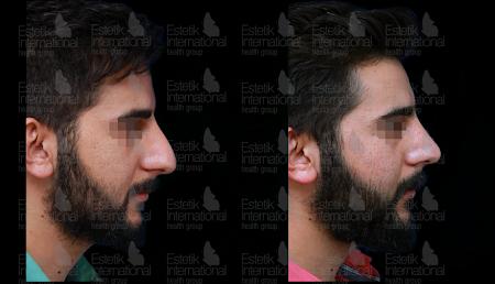 Фото пластической операции носа