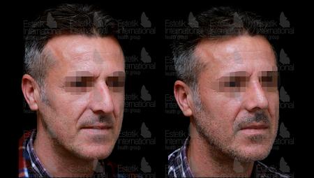 Фото до и после ринопластики носа