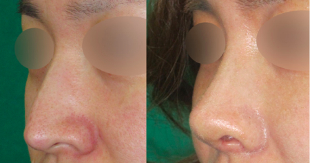До и после коррекции носа