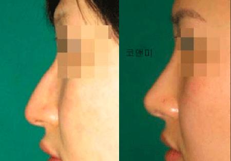 До и после пластики на нос