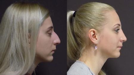 Фотография до и после ринопласткии