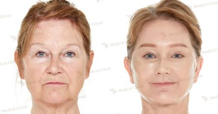 lо и после подтяжки лица в JK Plastic Surgery