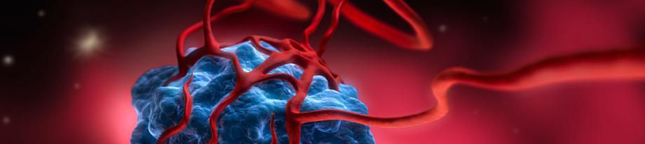 Химиоэмболизация для лечения опухолей